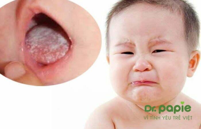 Tưa lưỡi khiến trẻ bị đau, khó chịu