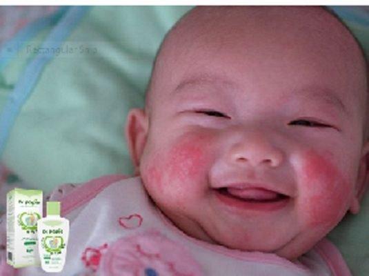 Các triệu chứng chàm sữa ở trẻ sơ sinh mẹ nên chú ý