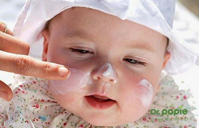 Dùng kem trị chàm sữa ở mặt cho bé