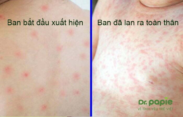 Giai đoạn phát ban ở trẻ bị sốt phát ban
