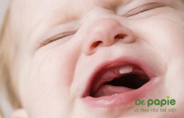 bé mọc răng cửa trên bị sốt