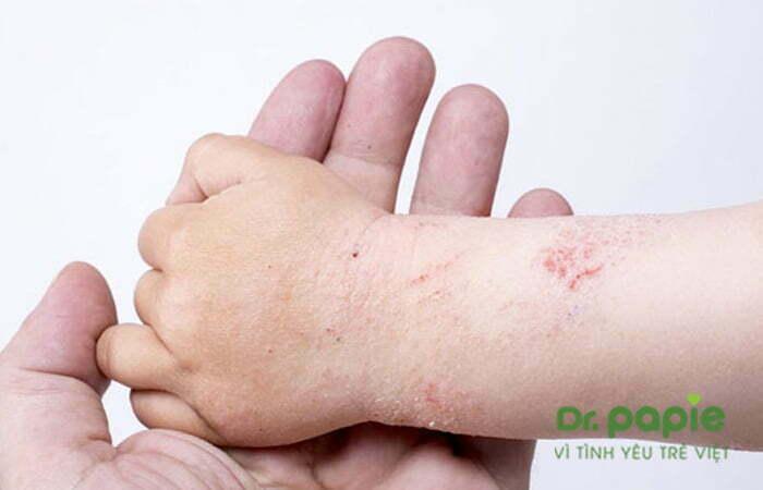 Trẻ bị chàm sũa ở tay