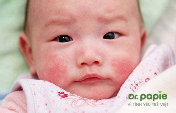 viêm da cơ địa ở trẻ sơ sinh dạng bán cấp