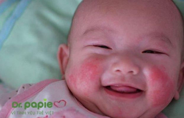chàm sữa ở trẻ sơ sinh và cách điều trị